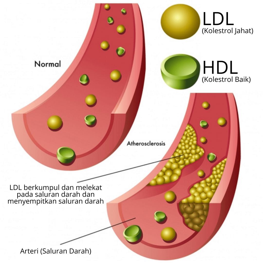 D'Aura LDL 1